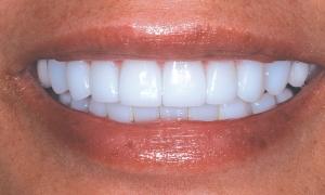 Veneers Draper Dentist