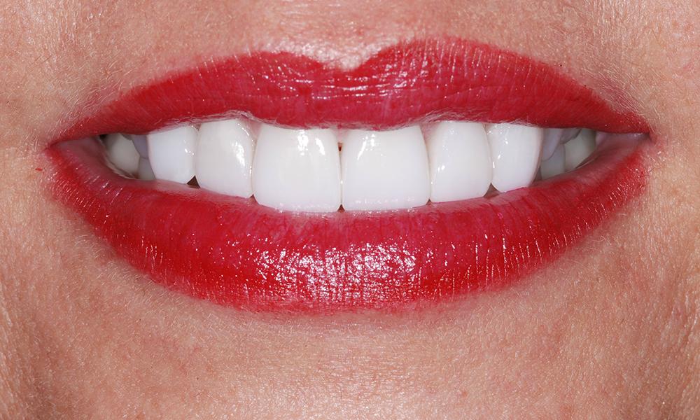 lip repositiong