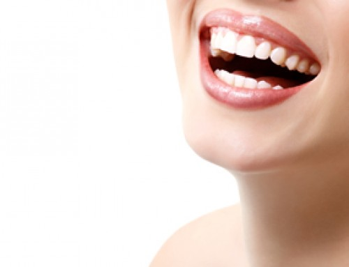 Five Things to Know about Teeth Whitening