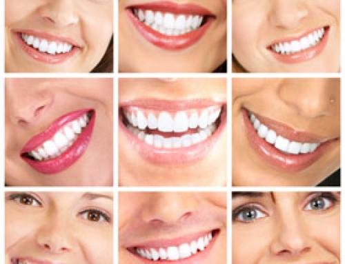 Modern Dental Implants