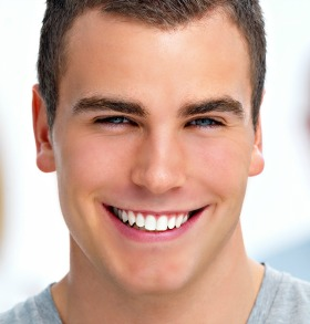 Draper Dental Veneers