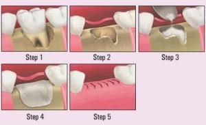 Oral Surgery - Bone Graft