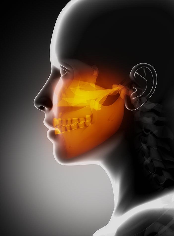 TMJ injury