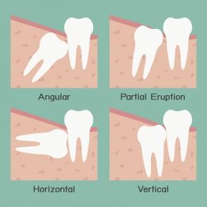 Wisdom Teeth Removal Sandy