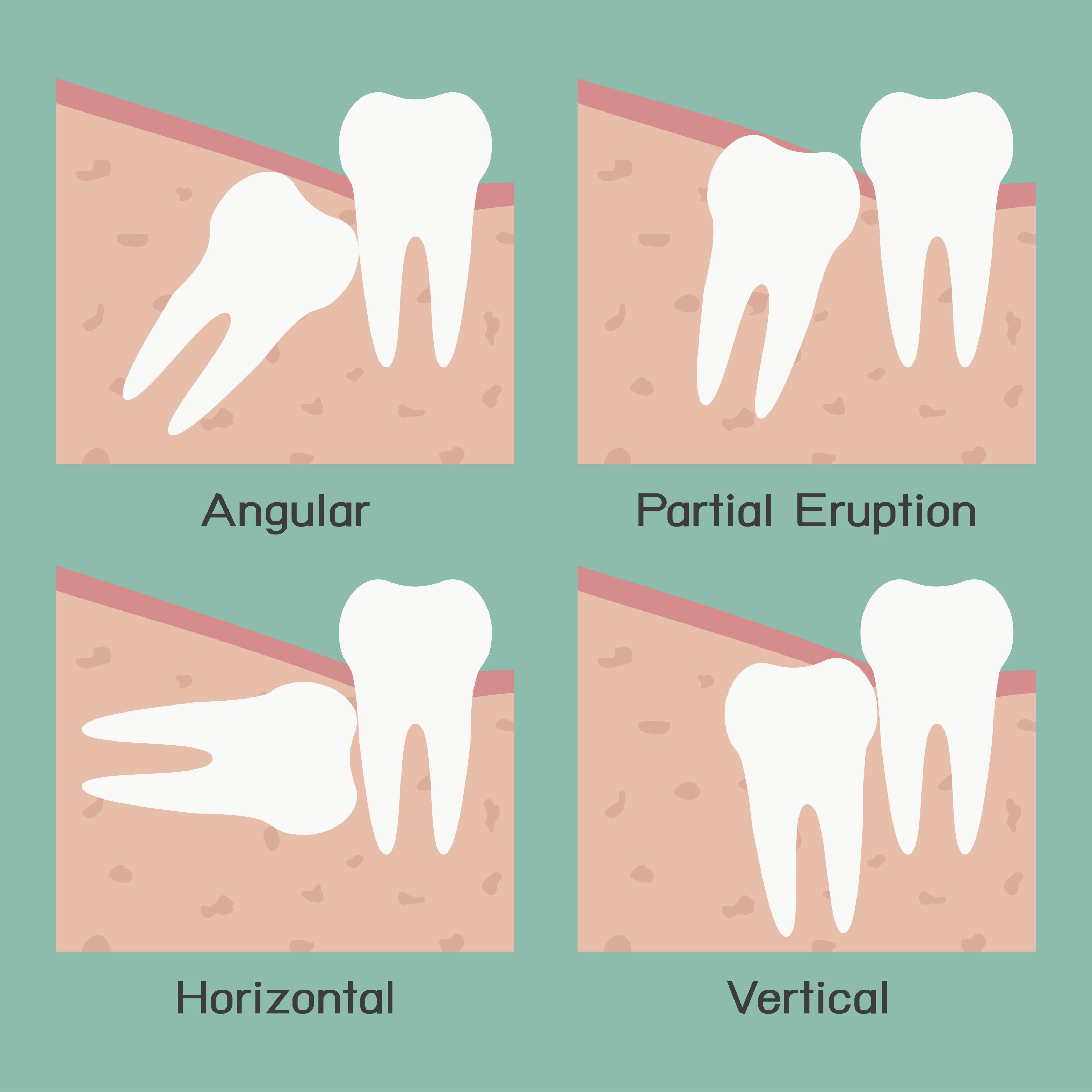 Extraction, Bone Grafting & Wisdom Teeth Draper | Walter ...