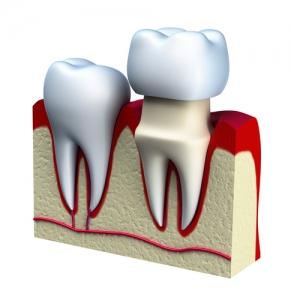 Dental Crown Draper, UT