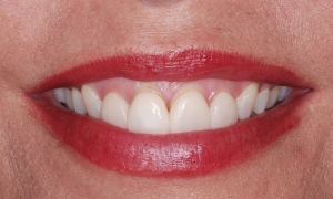 gummy smile treatment utah