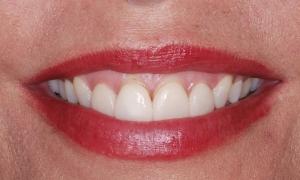 gummy smile treatment utah