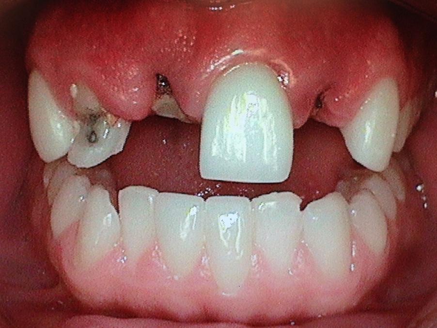 Dental implant case