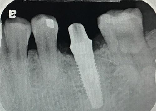 implant xray